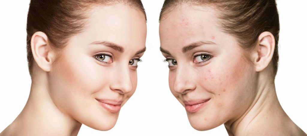 The best acne treatment clinic in town
