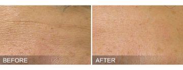 hydrafacial fine lines removal