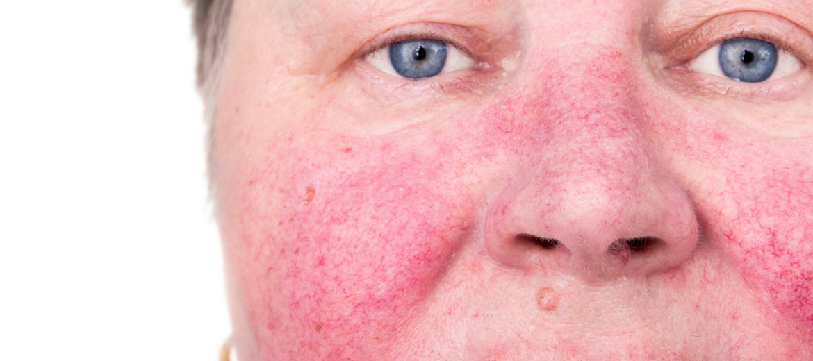 Rosacea Treatment Bloom Aesthetic Laser Clinic