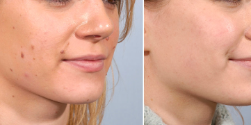skin tags removal surgery clinic in dubai