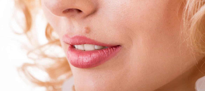 skin tags removal clinic in dubai