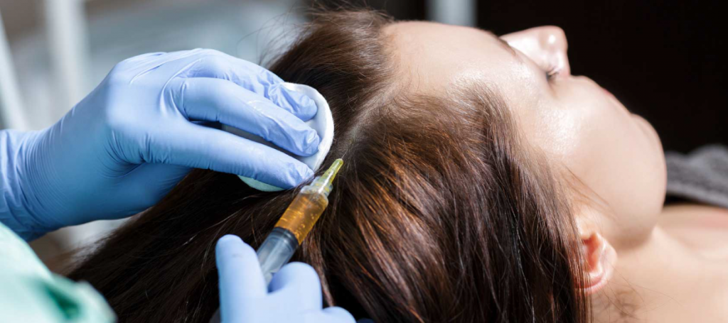 scalp treatment clinic in dubai